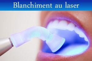 blanchiment-laser
