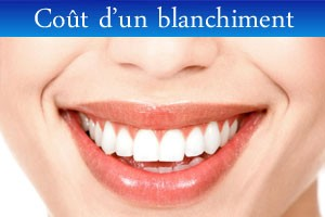 cout-blanchiment-dent